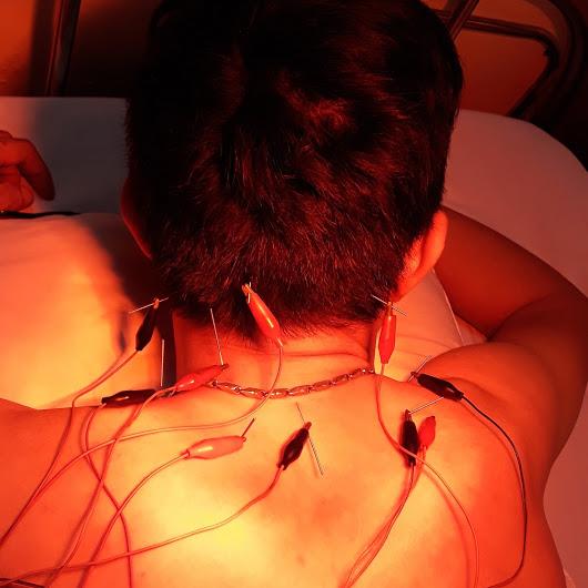 Điều trị đau cổ vai gáy tại nhà bằng Châm cứu,Bấm huyệt ,PHCN