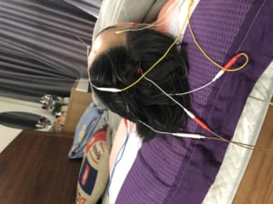 Châm cứu điều trị đau đầu