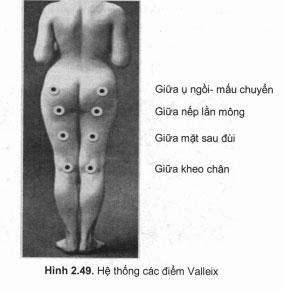 hệ thống điểm đau vallex