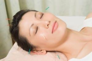 Châm cứu điều trị viêm mũi xoang